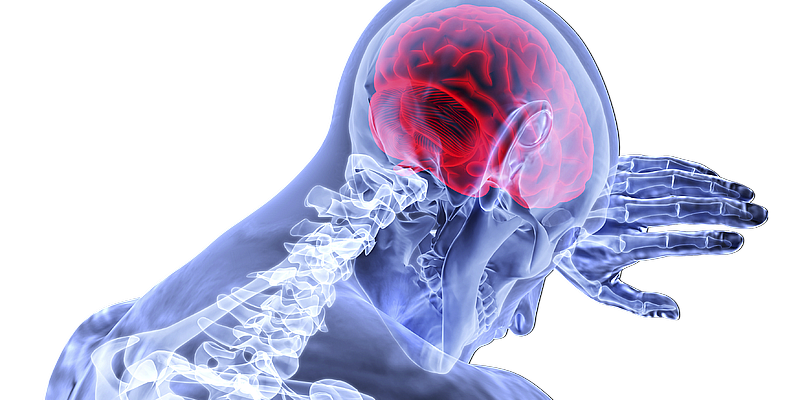 Gehirn Roentgenbild mit Body
